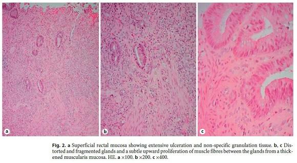 Síndrome da Úlcera Retal Solitária: Relato de um Caso Pediátrico
