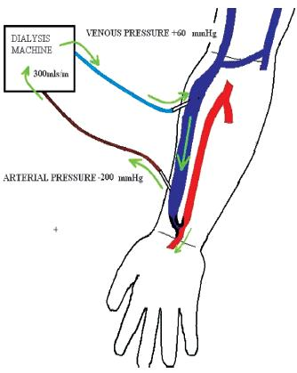 Av Fistula Radiocephalic in the fistula until the