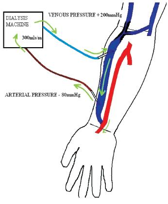 arteriovenous fistula surveillance: everyone's responsibility, Cephalic Vein