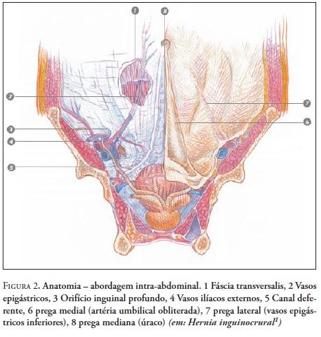 Hérnia Inguinal: Anatomia, Patofisiologia, Diagnóstico e Tratamento
