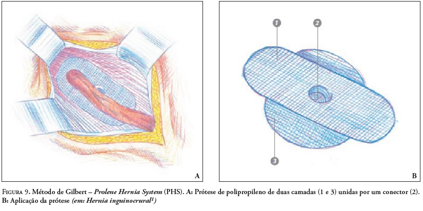 H 233 Rnia Inguinal Anatomia Patofisiologia Diagn 243 Stico E
